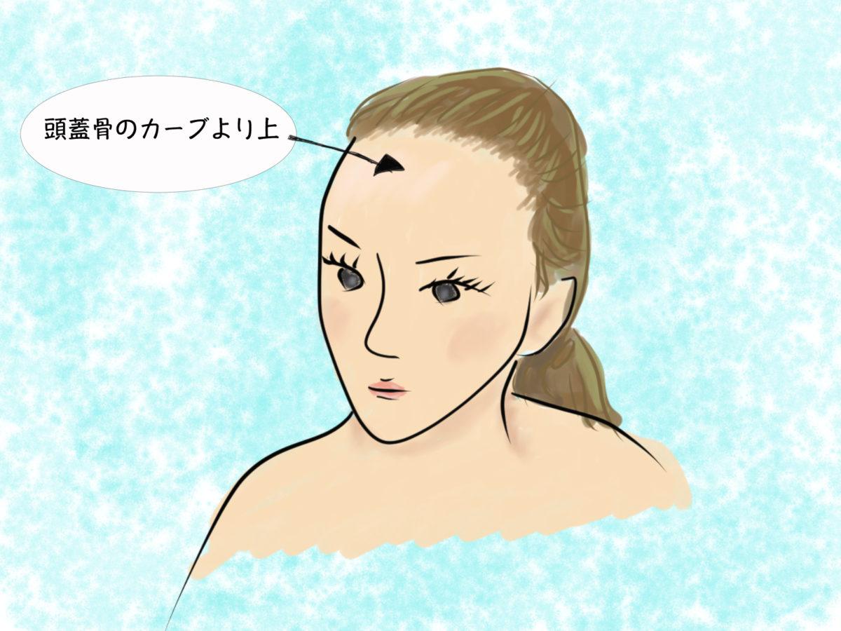 おでこ脱毛デザインの目安